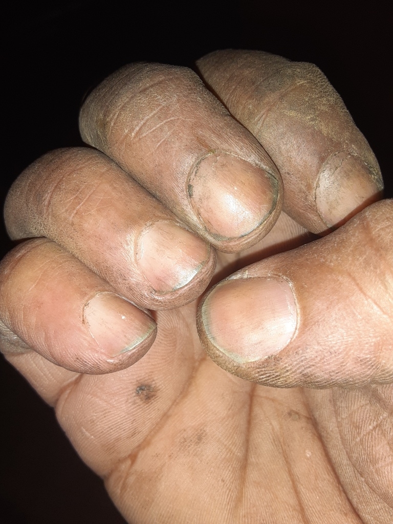 Right hand soiled in the palm, on the fingers and under the nail beds with fresh dirt from the garden. Fingers bent inward, skin dry, nails short